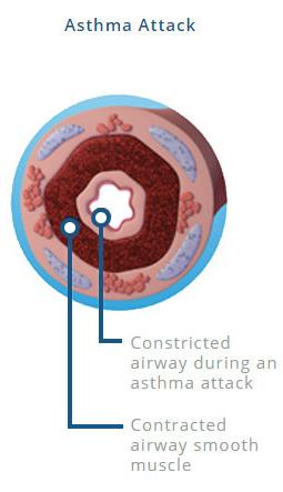 Bronchial Thermoplasty Asthma Treatment | Advocate Health ...