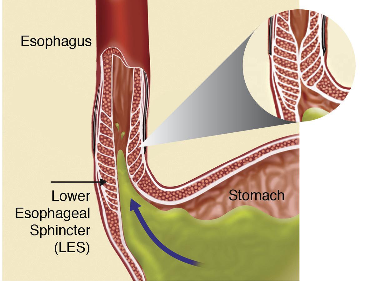 Acid Reflux & Barrett's Esophagus Treatment | Advocate